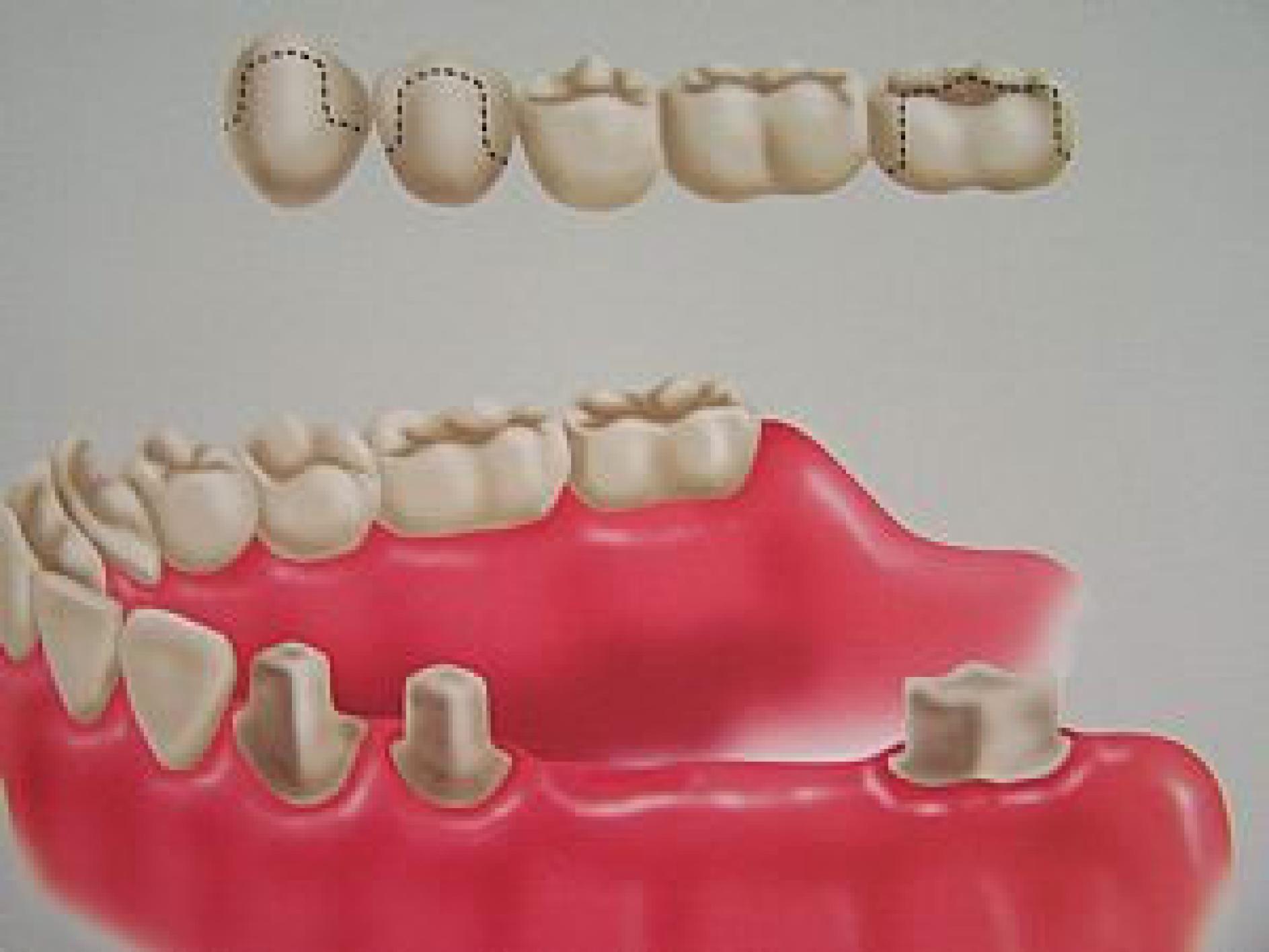 Fotos de proteses fixas dentarias 45